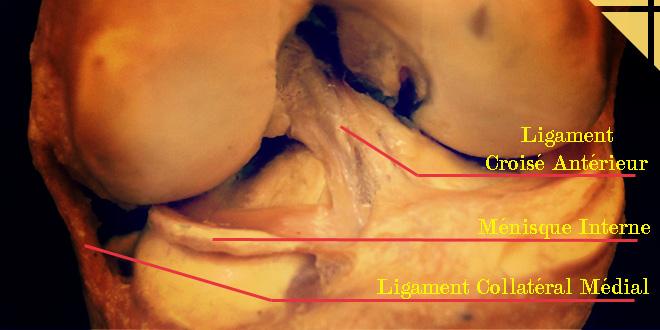 ligaments menisque articulation genou